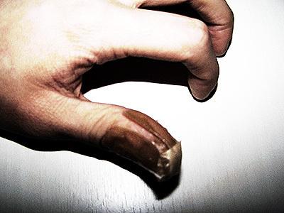 怪我した親指